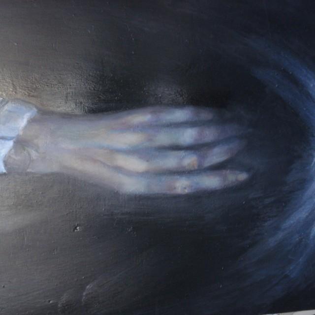 Patients hand